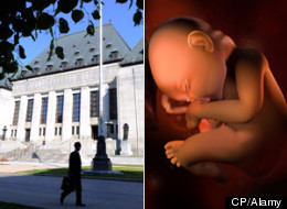 The Supreme Court will decide the case of Ivana Levkovic, who was charged with concealing a dead baby after her building's superintendent found a stillborn child in a garbage bag on her balcony after she moved out. (CP/Alamy)