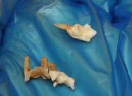 Graham Calder, 18, was eating some peanuts when he discovered a human tooth -- not his own -- in his mouth.