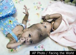 AP Photo / Facing the World