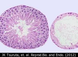 JK Tsuruta, et. al. Reprod.Bio. and Endo. (2012)