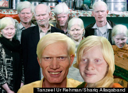 The world's largest family of albinos