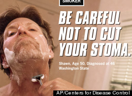 This image provided on Wednesday, March 14, 2012 by the Centers for Disease Control shows Shawn Wright who had a tracheotomy after being diagnosed with head and neck cancer. Tobacco taxes and smoking bans haven't budged the U.S. smoking rate in years. Now the government is trying to shock smokers into quitting with a graphic nationwide advertising campaign. (AP Photo/Centers for Disease Control)