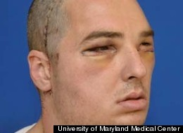 In this provided by the University of Maryland Medical Center, Richard Lee Norris is pictured after the face transplant.