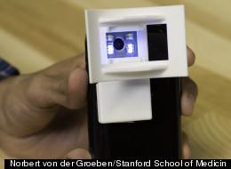 Norbert von der Groeben/Stanford School of Medicin