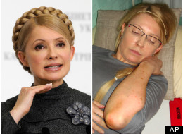 The Ukranian opposition leader before and after her imprisonment