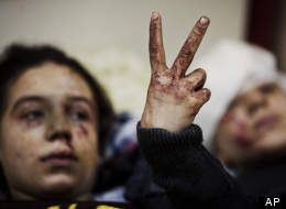In this Saturday, March 10, 2012, file photo, Hana, 12, flashes the victory sign next to her sister Eva, 13, as they recover from severe injuries after the Syrian Army shelled their house in Idlib, north Syria. Their father and two siblings were killed after their home was shelled.  (AP Photo/Rodrigo Abd, File)