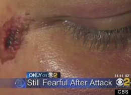 The 33-year-old Dodgers fan who was beaten up in the Dodger Stadium parking lot on May 20 agreed to share his experience for the first time with CBS.