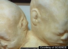 This two-headed death mask was made shortly after the death of conjoined twins.