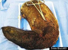 Doctors in Indore, India, recently removed this four-pound hairball from the stomach of a 19-year-old student.