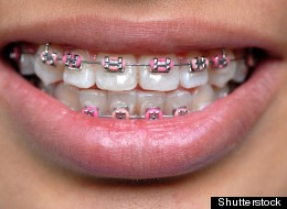 Fake braces, which come in many colors and designs, have been blamed in the deaths of two Thai teenagers.