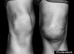 Knee scans could one day be used as a form of identification, a recent study suggests.
