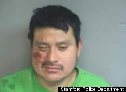 Emilio Mendoza, 27, has pleaded not guilty to assault and other chages.